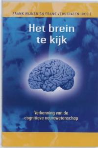 Het brein te kijk